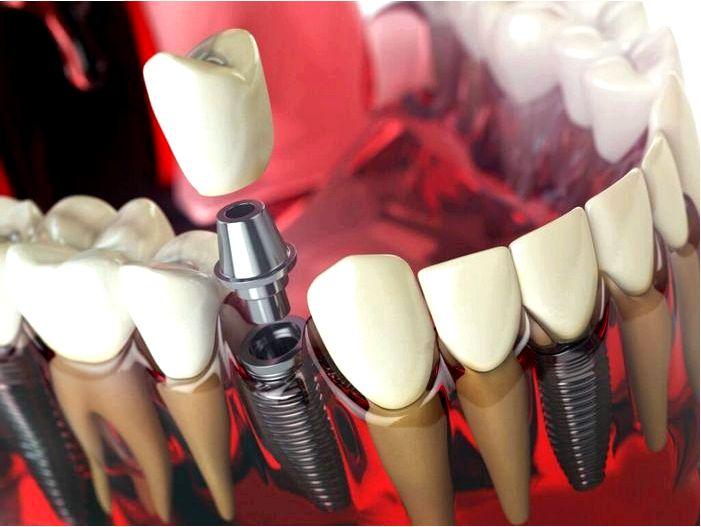 Зубные имплантаты – рекомендации, как выглядит, этапы лечения